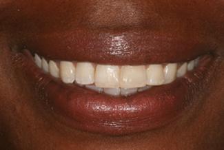 Inman Aligners Teeth After