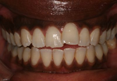 Inman Aligners Teeth Before