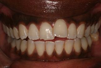 Inman Aligners Teeth Before