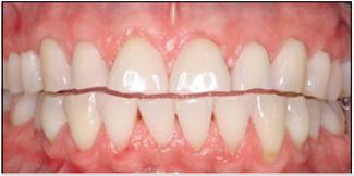 Pinhole Gum Recession Treatment After
