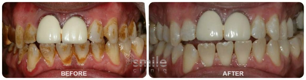 Dental Hygiene in London Before and After Treatment