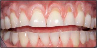 Pinhole Gum Recession Treatment Before