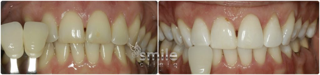 Enlighten Tooth Whitening Before and After 2