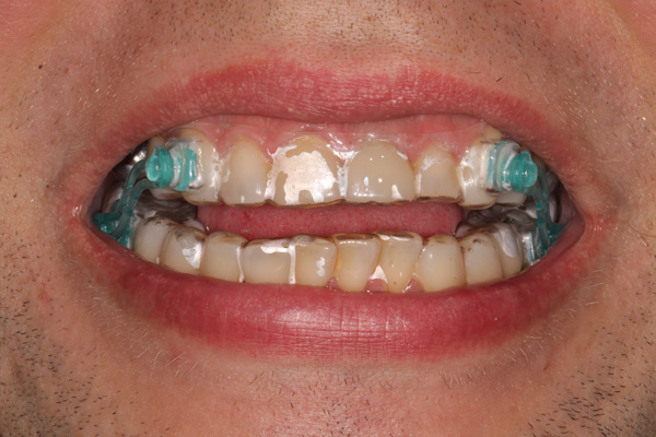 Manbdibular advancement splint