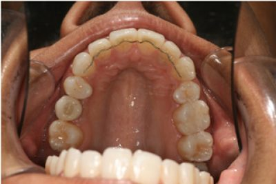 Invisible Braces in London After