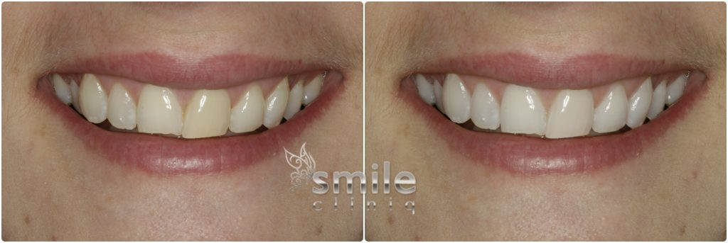 Enlighten Tooth Whitening Before and After 3