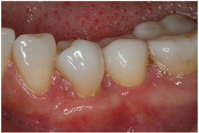 Treatment to receding gums after