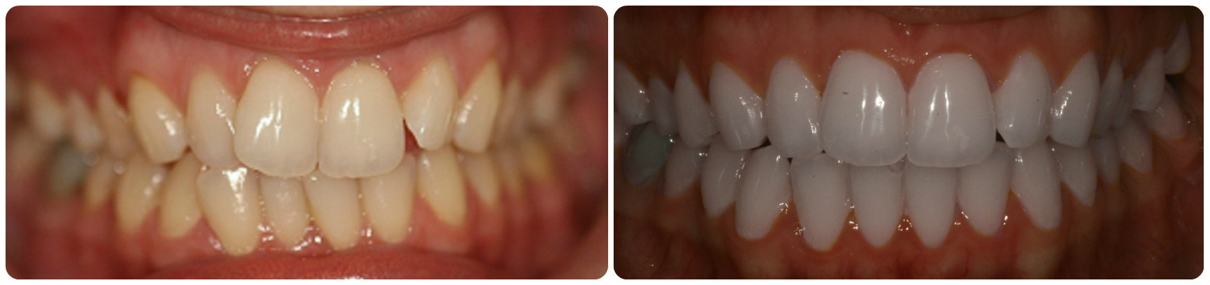 Lingual treatment before and after