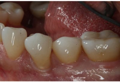 Treatment to receding gums before
