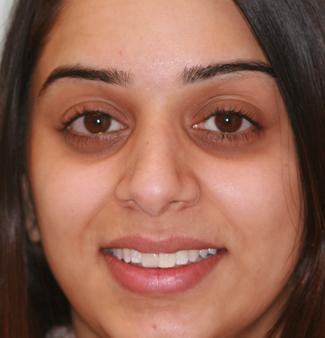Inman Aligners in London - Teeth After