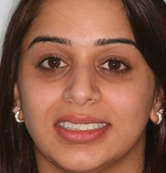 Inman Aligners in London - Teeth Before