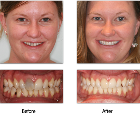 Dark Teeth Treatment Before and After