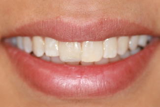 Teeth After Inman Aligners London