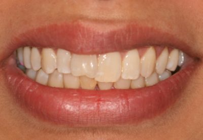 Teeth Before Inman Aligners London