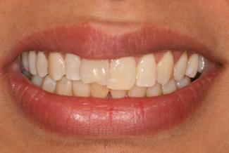 Teeth Before Inman Aligners London