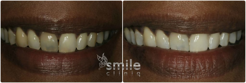 Enlighten Tooth Whitening Before and After 4