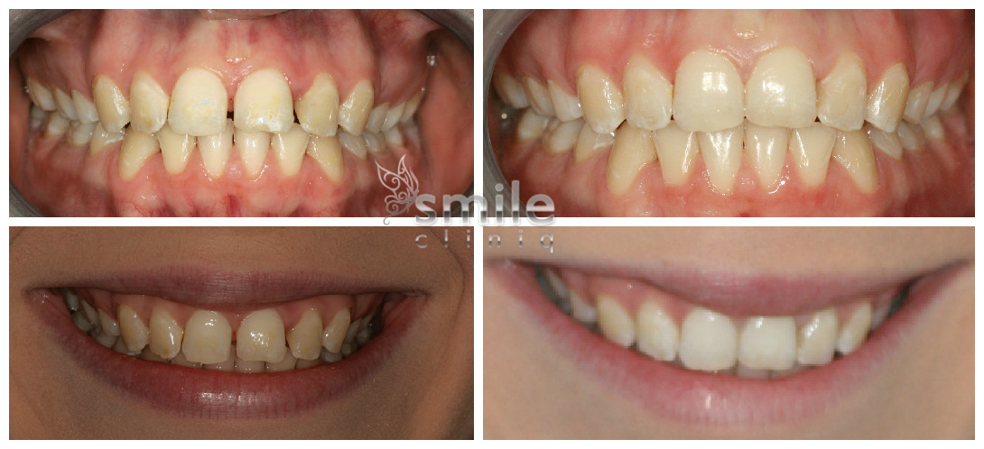 Lingual treatment in London before and after