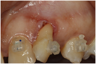 Receding Gums Treatment Before