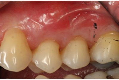 After treatment to receding gums