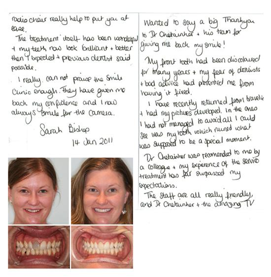 Tooth Whitening Testimonial