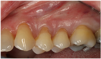 Before treatment to receding gums