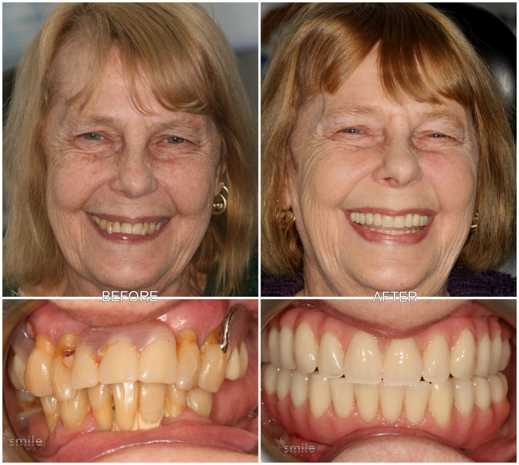 Before and After Zygomatic Arch Implants
