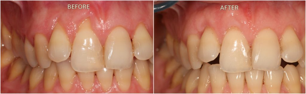 Receding Gums Treatment Before and After