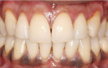 gum bleaching treatment in london after