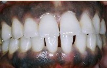 Gingival depigmentation before