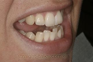 Inman Aligners in North London - Teeth Before