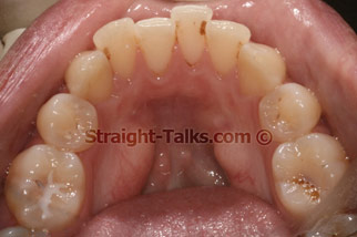 Inman Aligners with Smile Cliniq - Teeth Before