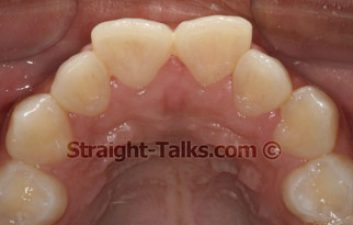 Case-Study-5-Occlusal-Before