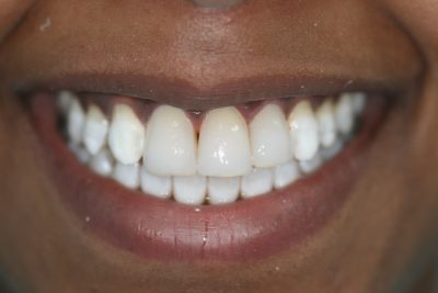 cosmetic_dentist_london_after