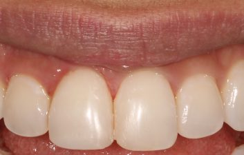 Composite_Veneer_London_After
