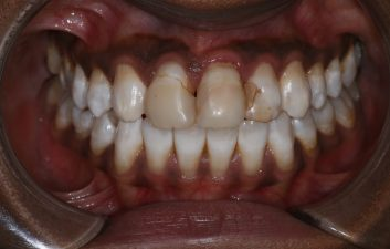 Composite_veneer_london_before