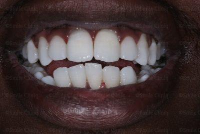 Dark incisor after