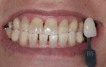 enlighten_whitening_treatment_london_after
