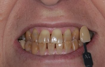 enlighten_whitening_treatment_london_before