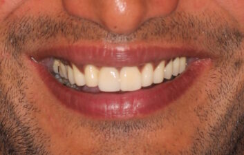 Front tooth implant after