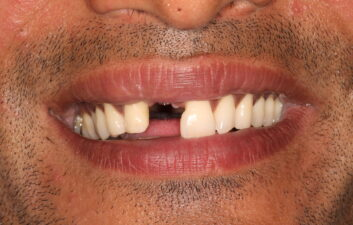 Front tooth implant before