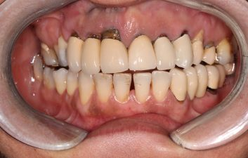 dental_implants_london_before