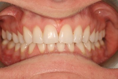 Inman_aligner_london_after