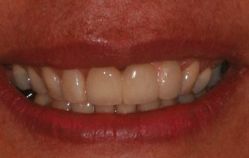 dental_implants_london_after