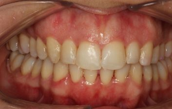 Invisalign_treatment_london_after