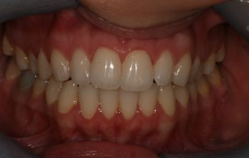 Lingual-braces-london-after