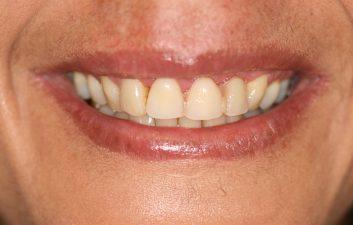 dental_implants_london_after