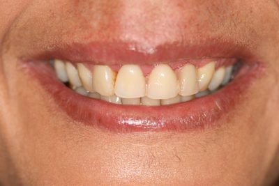 Dental implants London After