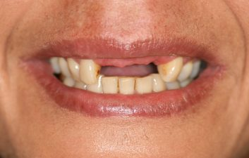 dental_implants_london_before