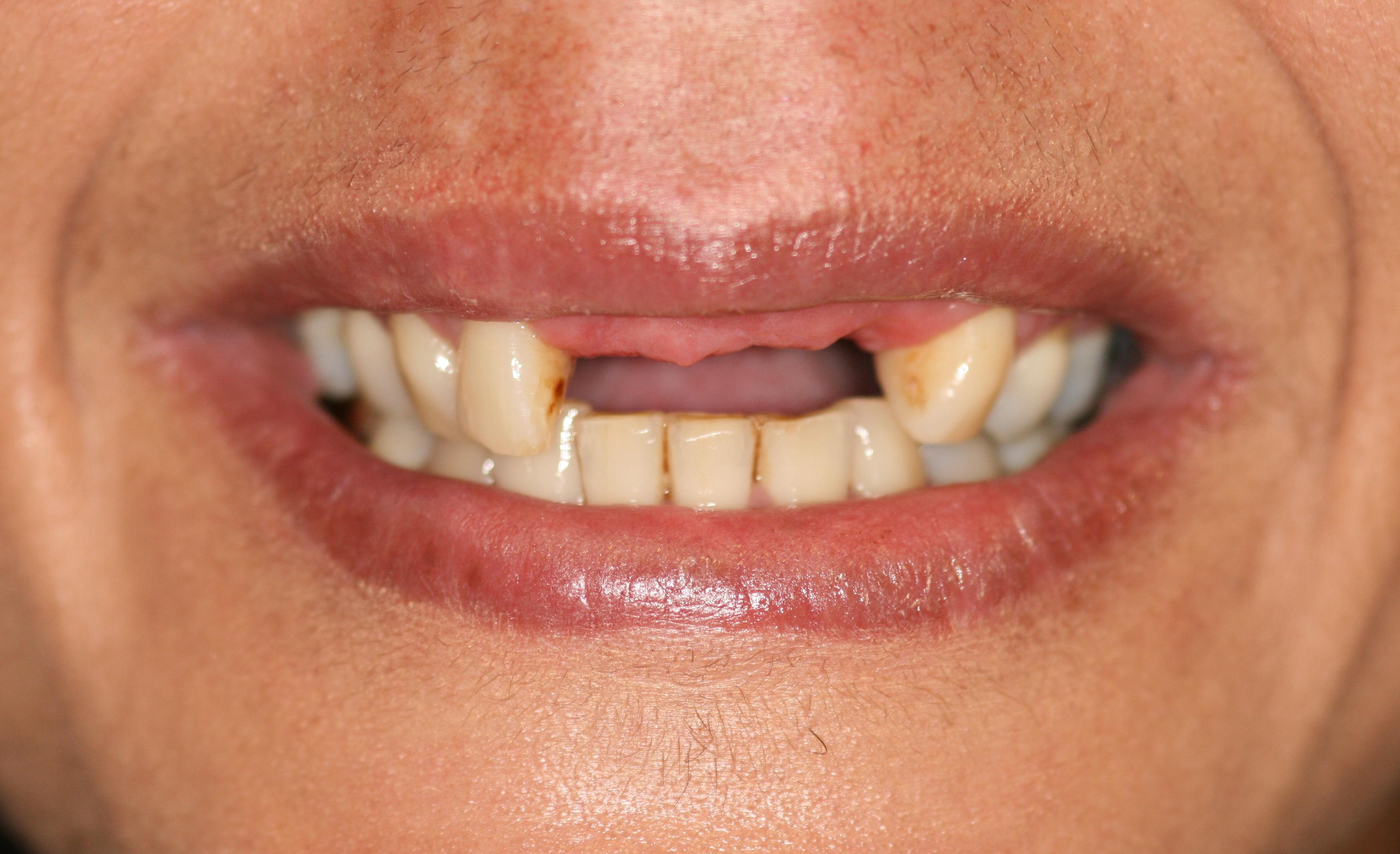 Dental implants London Before