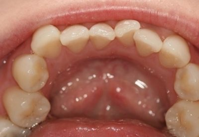 invisalign dentist before